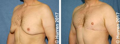 Male-Breast-Reduction-Photo_Ex11_ob_150_sm60
