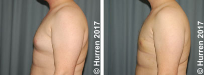 Male-Breast-Reduction-Photo_Ex13_la_150_sm60