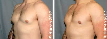 Male-Breast-Reduction-Photo_Ex17_ob_150_sm30