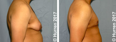 Male-Breast-Reduction-Photo_Ex19_la_150_sm60