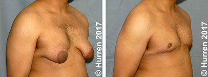 Male-Breast-Reduction-Photo_Ex19_ob_150_sm60