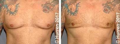 Male breast reduction. photos before and after liposuction. Gynaecomastia.