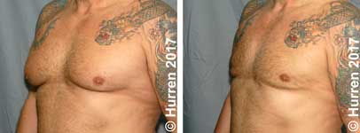 Male-Breast-Reduction-Photo_Ex21_ob_150_sm30