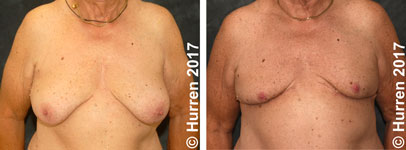 Male-Breast-Reduction-Photo_Ex23_ft_150_sm60