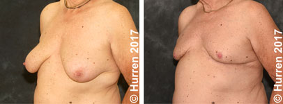 Male-Breast-Reduction-Photo_Ex23_ob_150_sm60