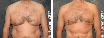 Male-Breast-Reduction-Photo_Ex56_ft_150_sm60