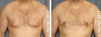 Male-Breast-Reduction-Photo_Ex8_ft_150_sm60