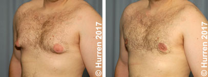 Male-Breast-Reduction-Photo_Ex8_ob_150_sm60
